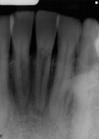Invasive cervical resorption is a type of external root resorption that usually occurs just under the gumline.
