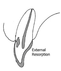 external resorption